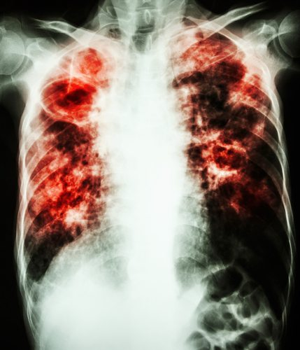 X-ray of Tuberculosis Infected Lung