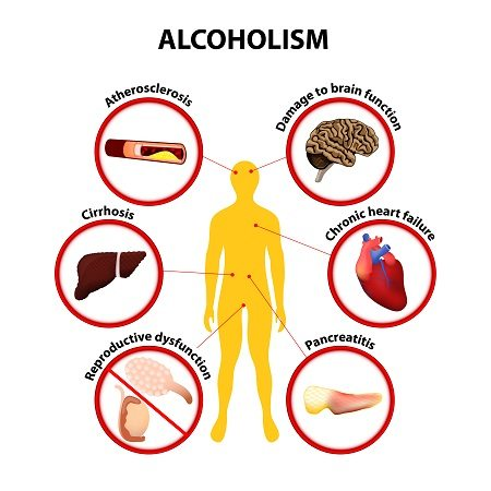 Alcohol affects your body in horribly deleterious ways