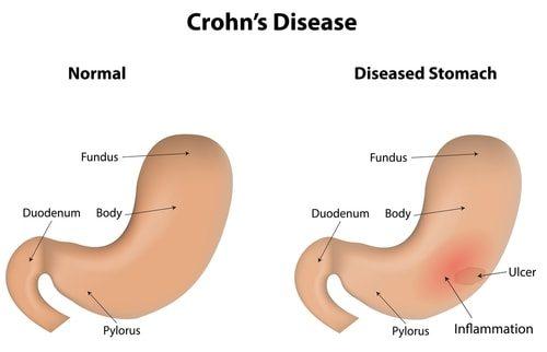 Crohn's Disease explained