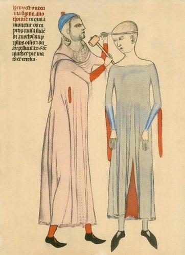 Trepanation was barbaric