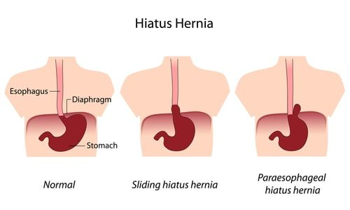 Your Acid Reflux might be a hernia.