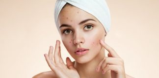 how-to-get-rid-of-acne-in-10-simple-steps