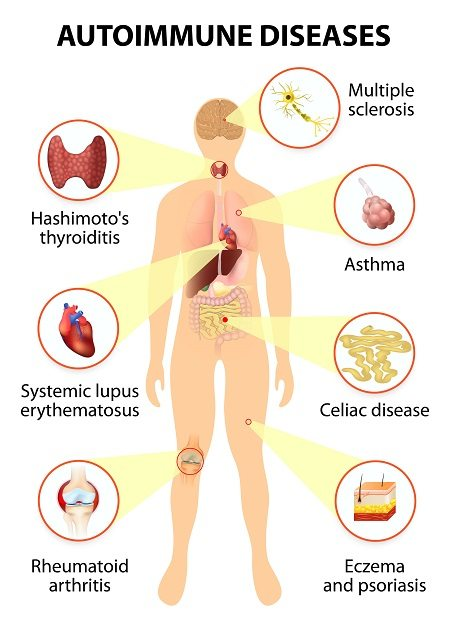 Autoimmune diseases are numerous