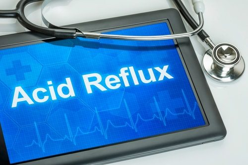 Why Do I Get Acid Reflux? Top 10 Causes of Acid Reflux