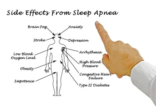 Snoring is bad enough. Sleep apnea can be detrimental to your health.