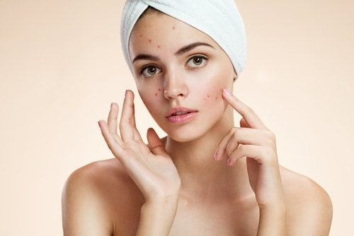 how-to-get-rid-of-acne-in-10-