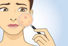 10 Reasons Why You're Breaking Out In Acne In Your 30s
