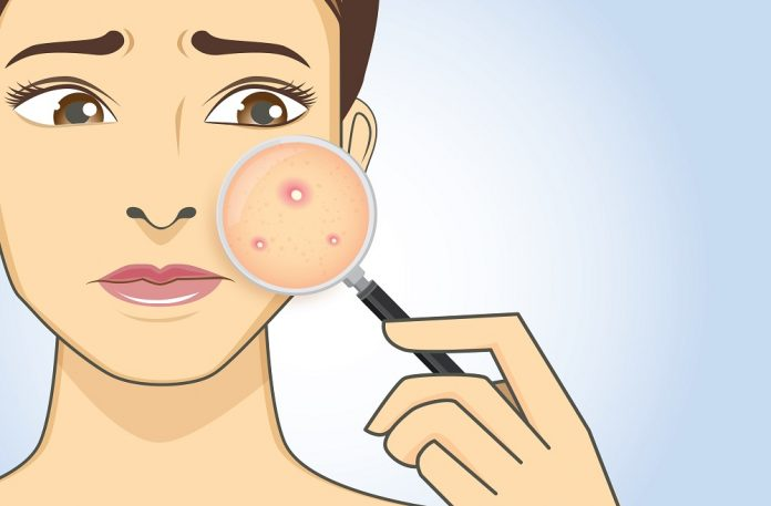 10 reasons why you\u0027re breaking out in acne in your 30s