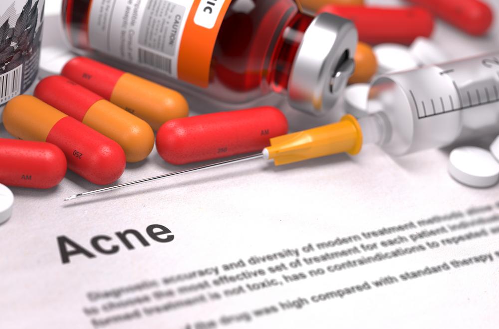 Acne Medicine