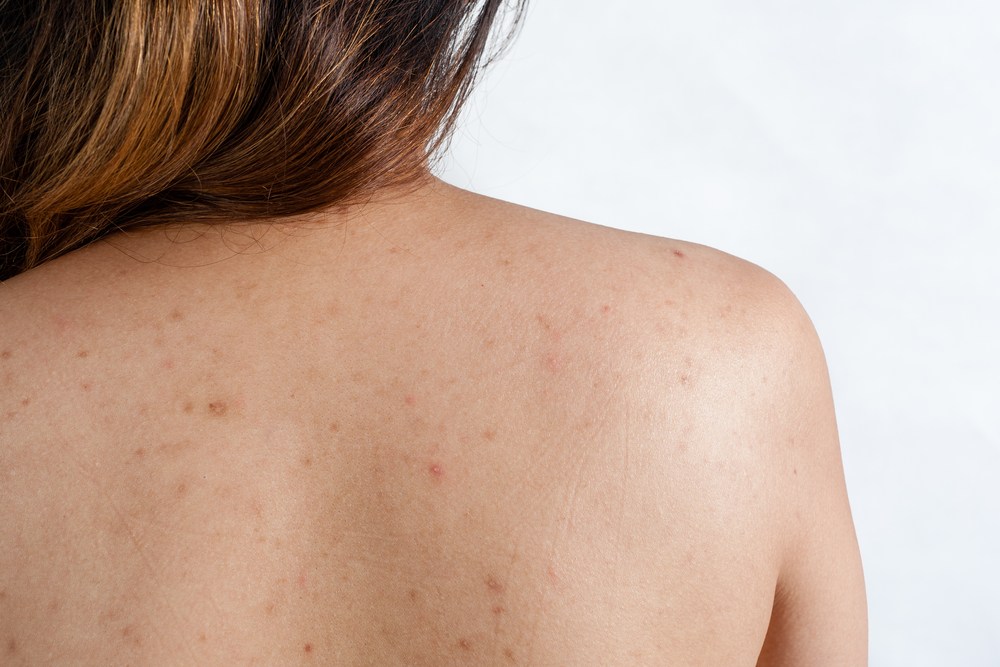 Acne on Your Back